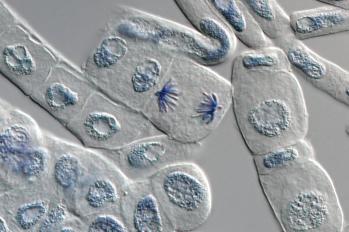 image_microtome2